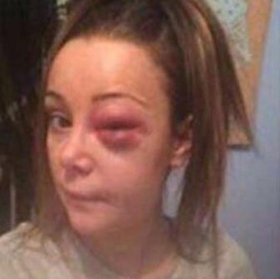 Kerrie McAuley's injuries. Picture: Facebook