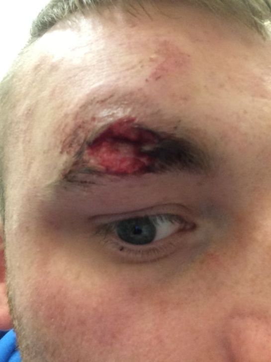 The injury inflicted by Michael Sancaster when he bit part of a man's eyebrow in a city centre attack (Image: NCJ Media)